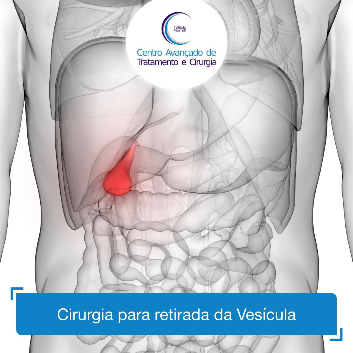 INSTITUTO_MORRELL-2018-Cirurgia_para_retirada_da_Vesícula-1200x1200.png