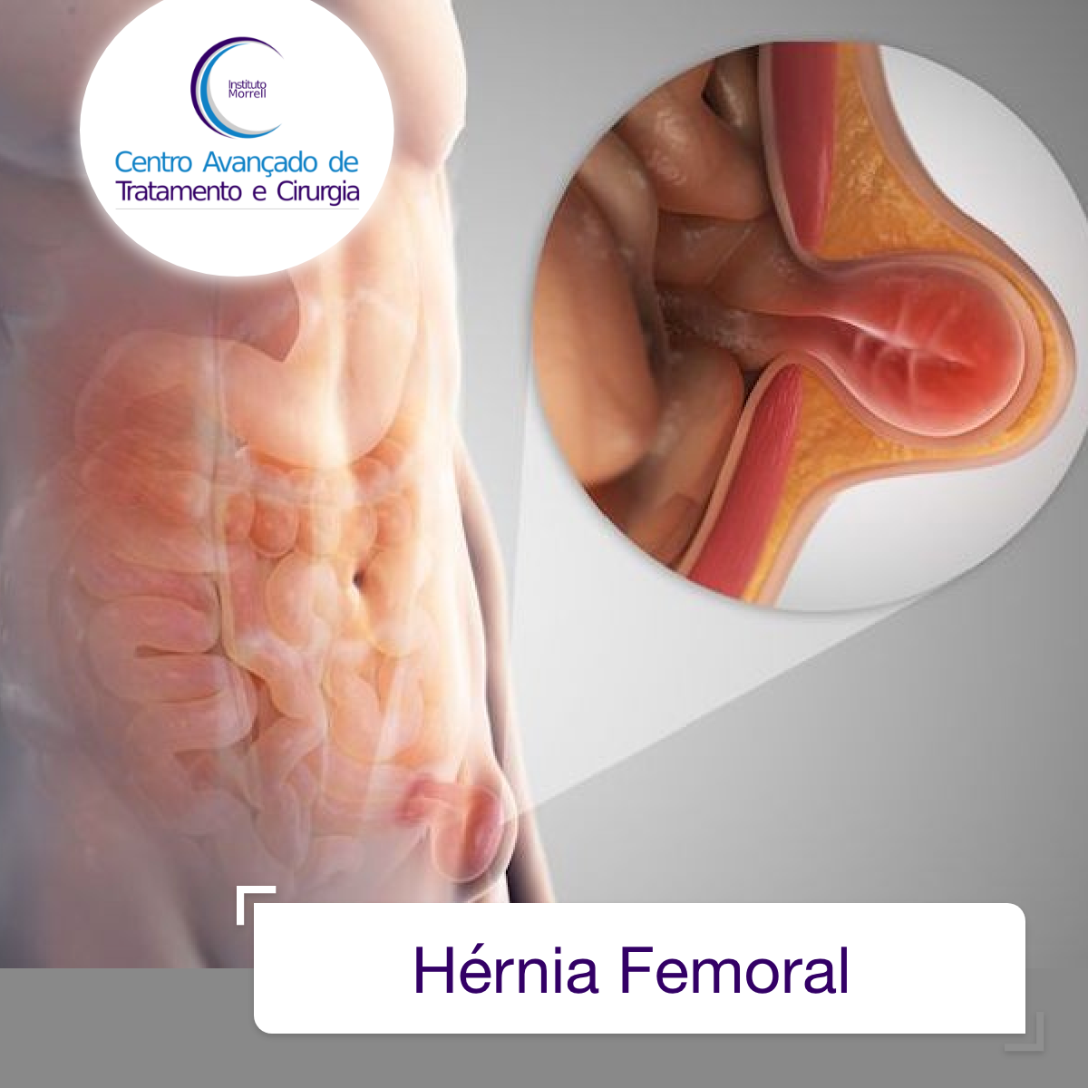 INSTITUTO_MORRELL-2018-Hérnia_Femoral-1200x1200.png